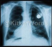 pacemaker Image